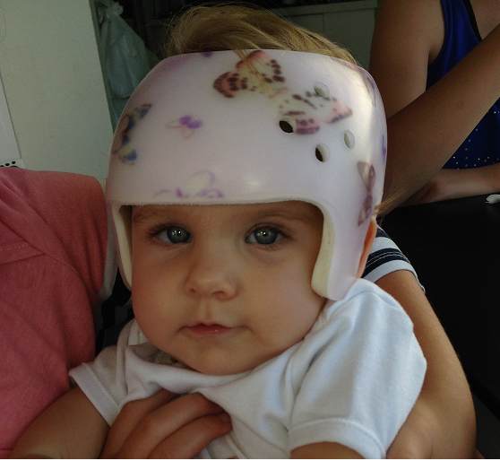 Preventing Flat Head Syndrome Or Plagiocephaly